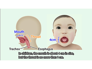 Protection of children from choking accidents